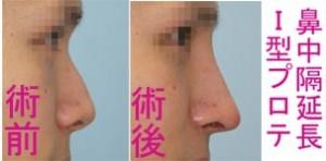 鼻中隔延長+I 型プロテーゼ