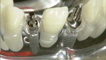 歯のインプラントのトラブルと美容整形のトラブルは似ている