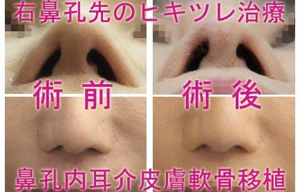 耳介皮膚軟骨移植