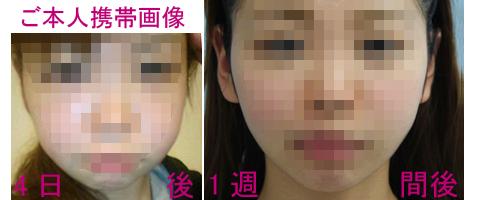 バッカルファット4日後、1週間後の症例写真
