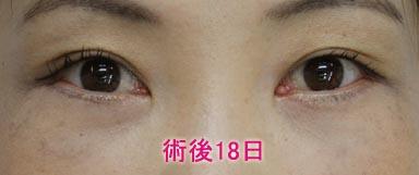 下眼瞼切開+脱脂+注入 術後18日