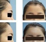 額のハイドロキシアパタイト