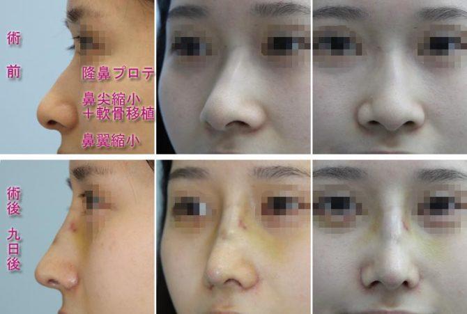 隆鼻シリコンプロテーゼ、鼻尖縮小、鼻翼縮小