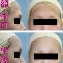 額の美容整形・アパタイト