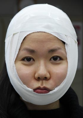 頬の脂肪吸引後の圧迫包帯 美容整形
