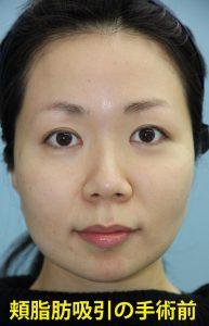 頬の脂肪吸引 美容整形