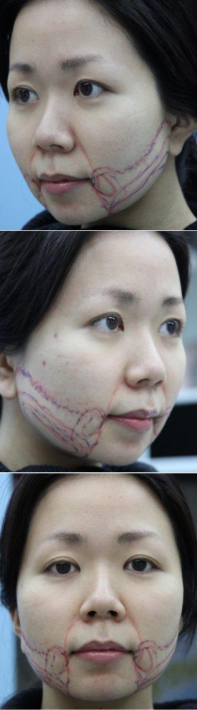 頬の脂肪吸引 フェイスライン