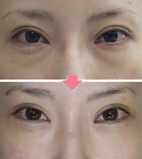 目の下のクマ 経結膜法脱脂