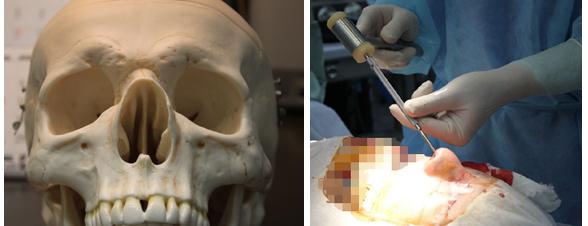 鼻骨の横幅は骨切り(削りはダメ) osteotomy