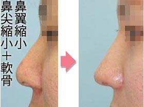 鼻尖縮小での鼻先への軟骨軟部移植