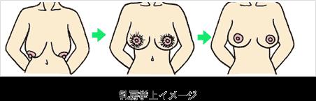 乳房挙上イメージ