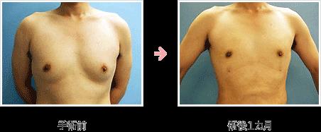 女性化乳房修正