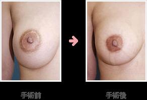 乳輪縮小他院手術