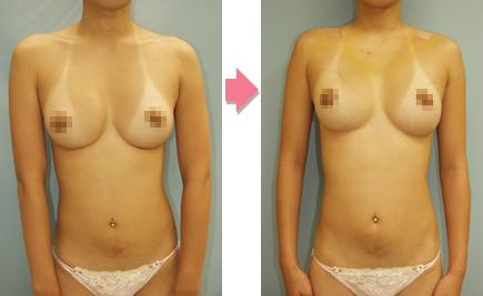 肩幅狭小化手術