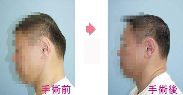 後頭部絶壁手術