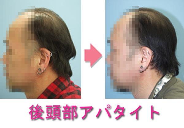 後頭部絶壁への手術治療