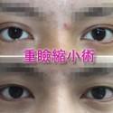 重瞼縮小術 二重を狭く