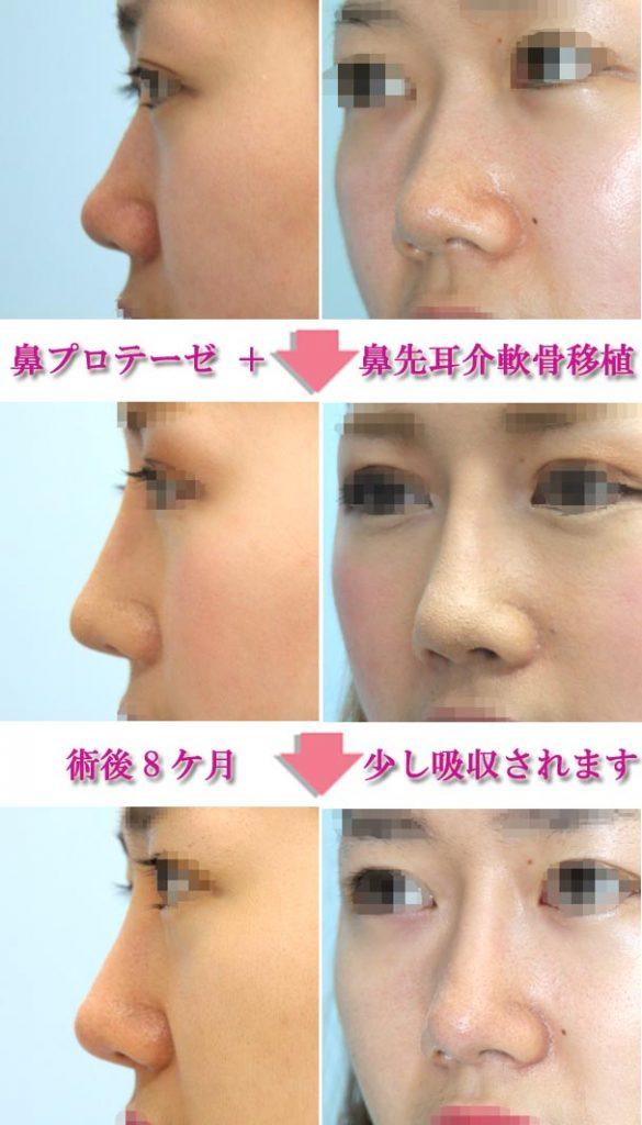 鼻プロテーゼ+耳介軟骨移植