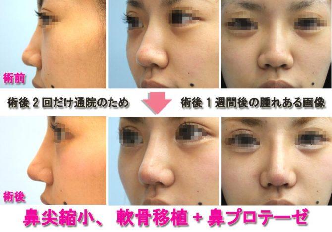 鼻尖縮小 軟骨移植+シリコンプロテーゼ