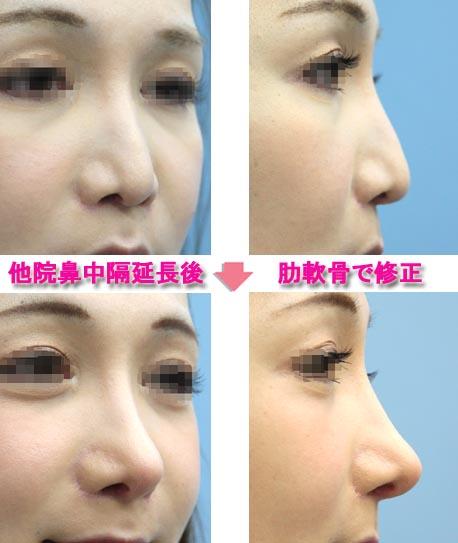 鼻中隔延長の再手術 肋軟骨