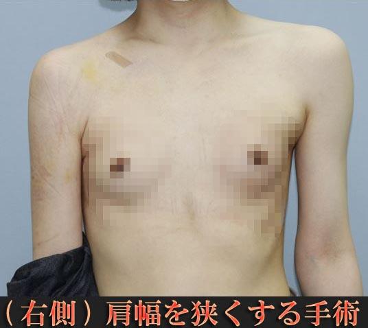 肩幅を狭くする手術