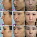 鼻中隔延長手術