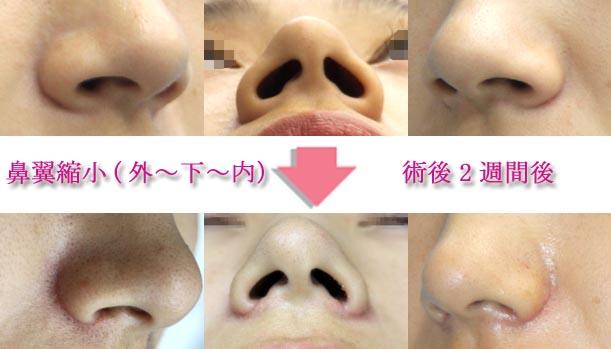 鼻翼縮小の傷