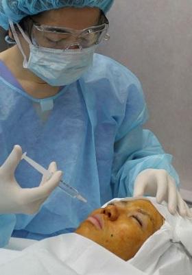 眼窩下神経ブロック 鼻の整形
