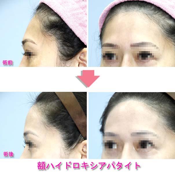 額を丸くする治療(アパタイト手術)