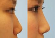 隆鼻術ハイブリッドプロテーゼ